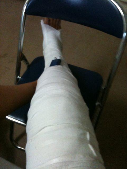 手術直後の足